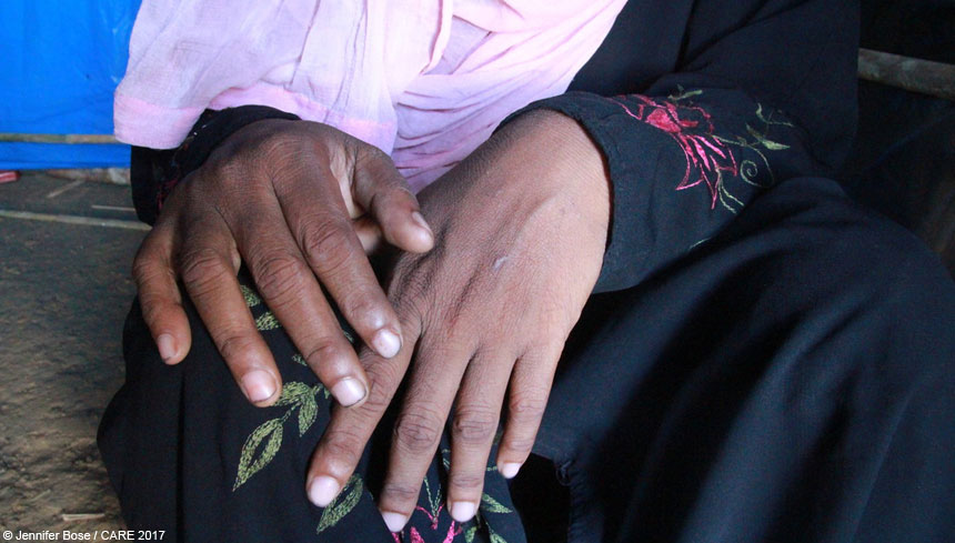 A woman refugee's hands at refugee camp in Bangladesh