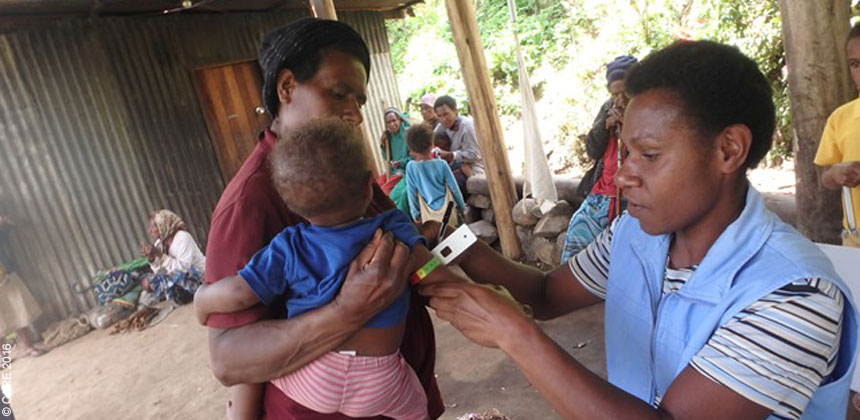 Health worker checking baby for signs of malnutrition