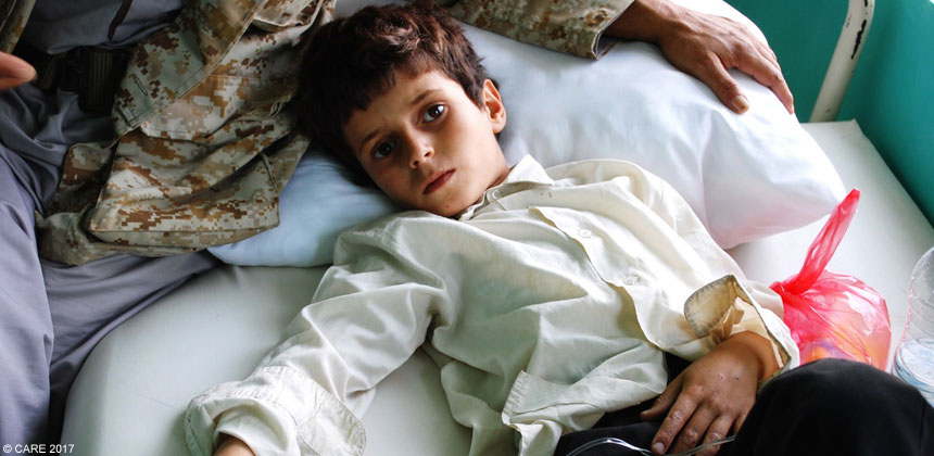 A young boy in Yemen lies in a hospital bed