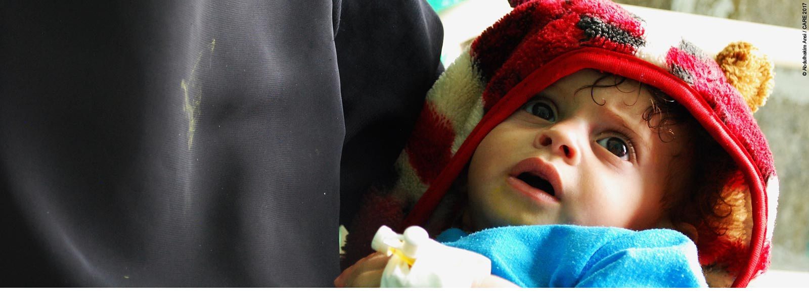 Baby recovering from cholera in Yemen