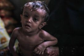 A malnourished boy in Yemen